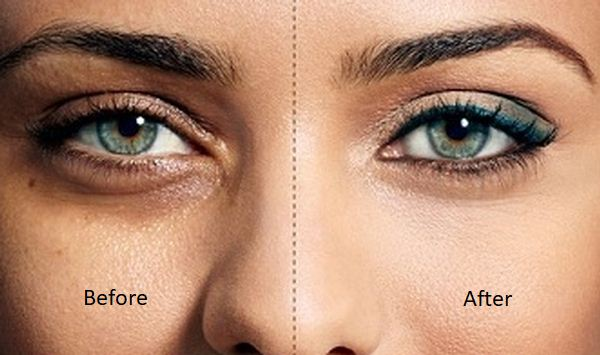 Removing badly can be the cause of your dark circles!